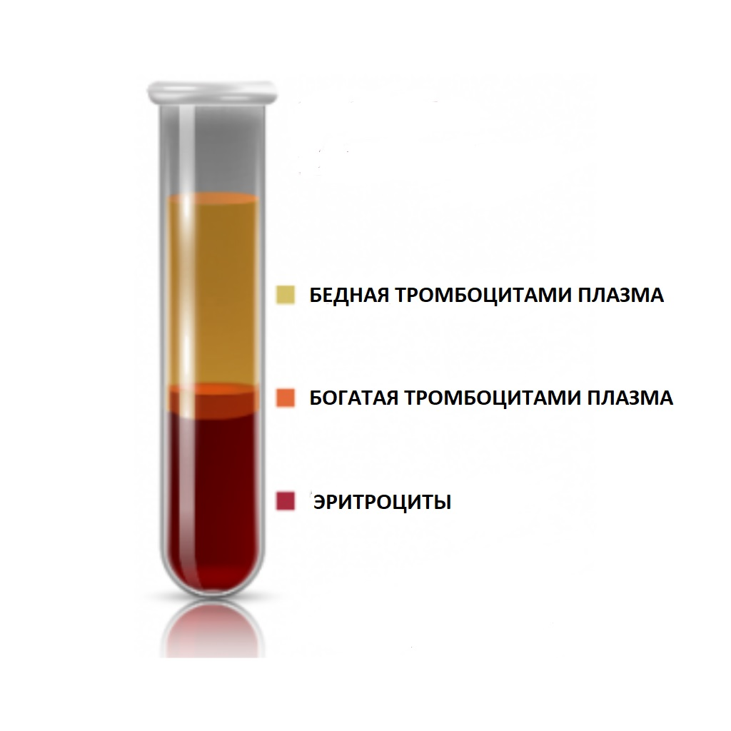 PRP-терапия и плазмолифтинг разница