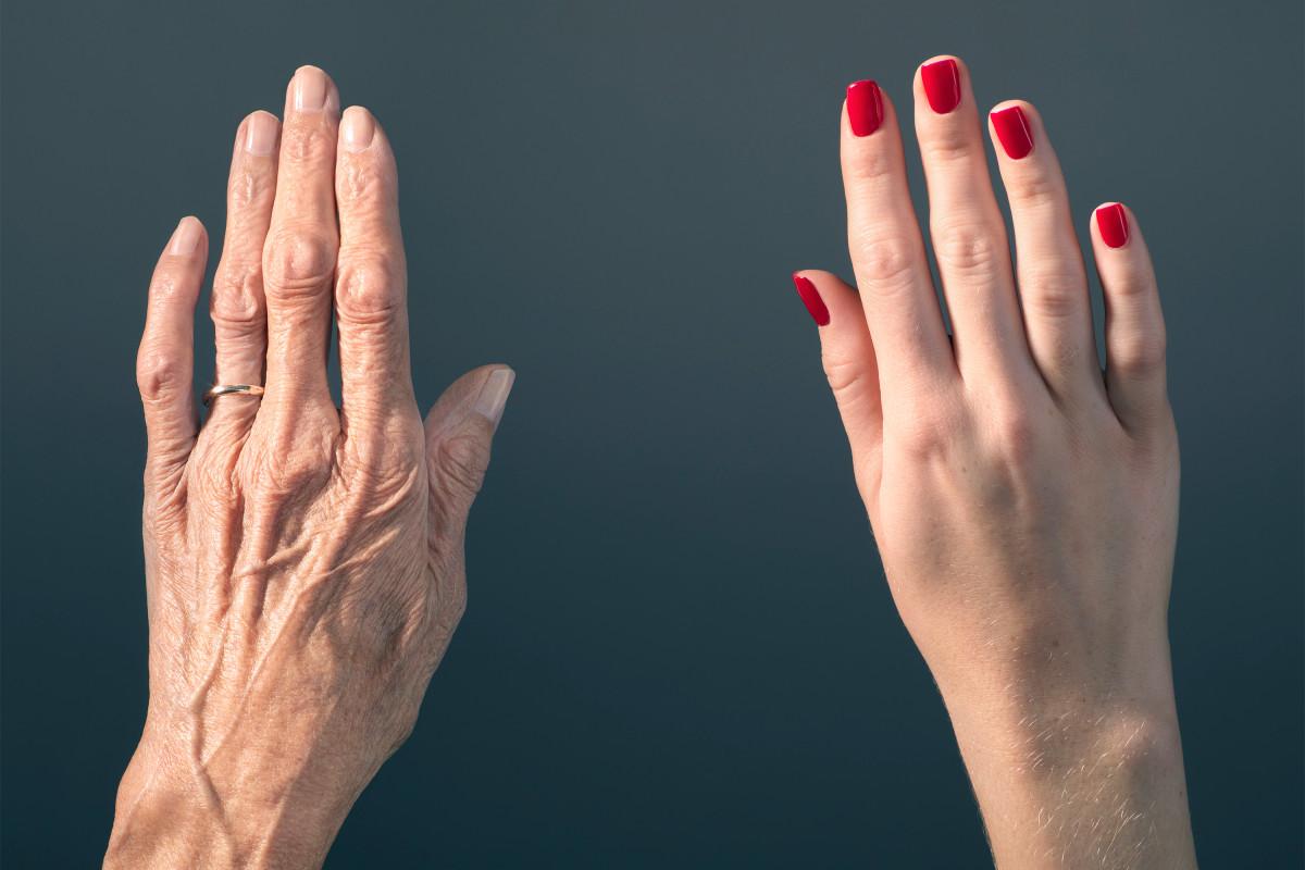 фотоомоложение рук