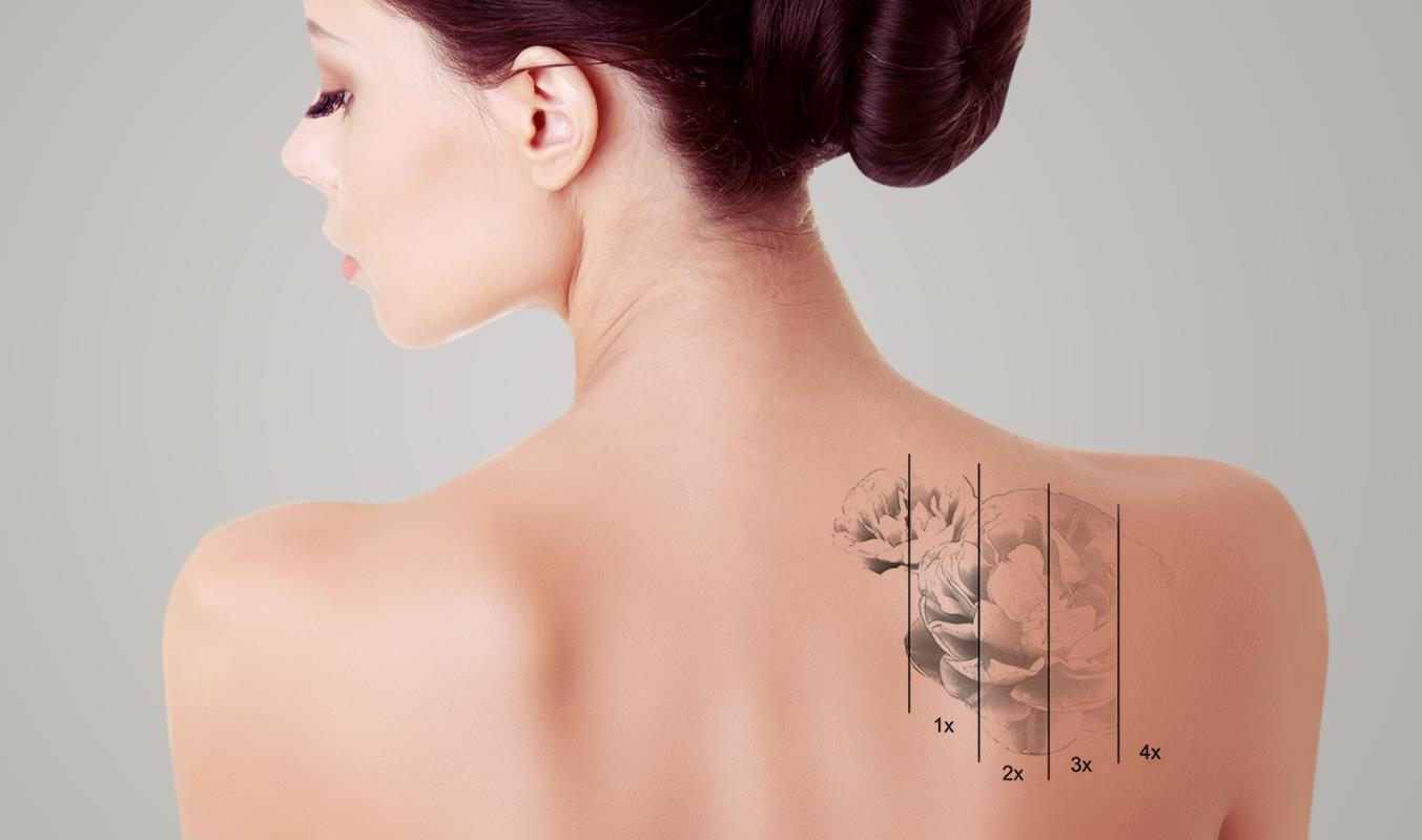 Удаление татуировок и татуажа